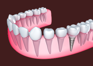 An Illustration of Dental Implant