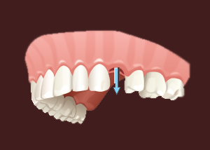 An Illustration of Tooth Extractions