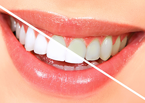 A Photo Showing Result of Teeth Whitening