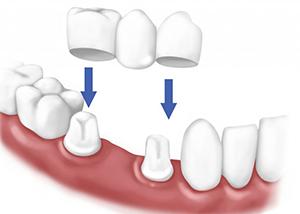 An Illustration of Dental Crowns